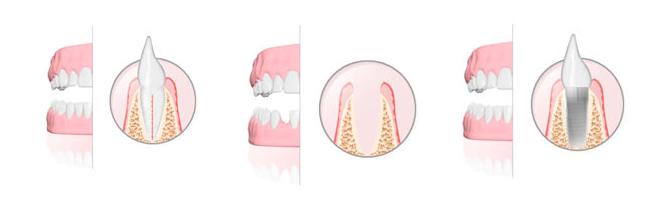Impianto dentale in titanio