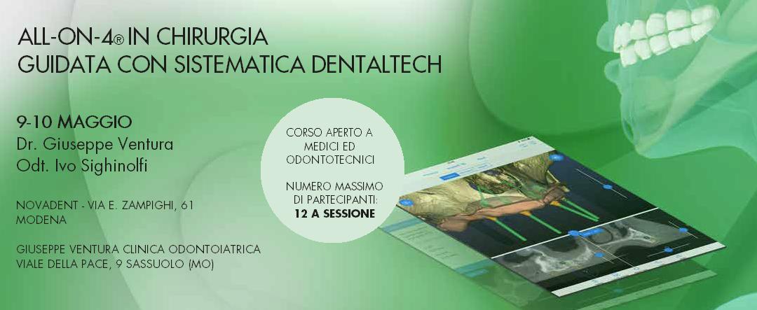 All-On-4® in chirurgia guidata con sistematica Dental Tech
