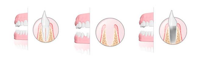 Cosa sono gli impianti dentali