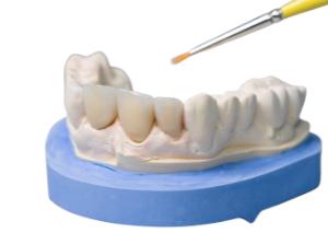 Realizzazione del dente