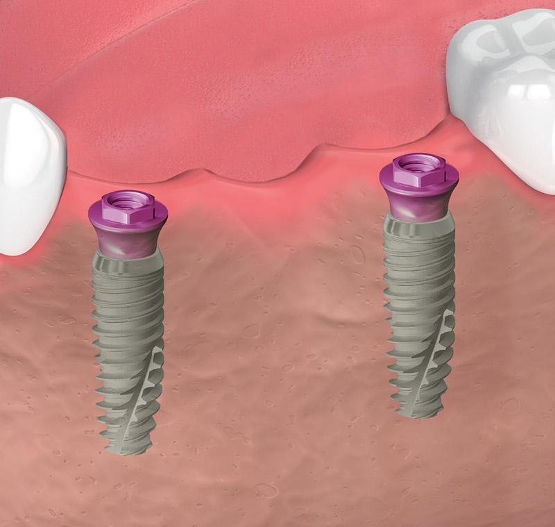 Pilastro transmucoso - Osteointegrazione implantare