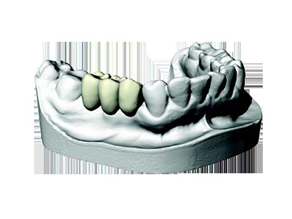 Trattamenti con impianti dentali